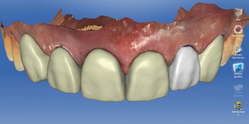 Моделирование коронок в цифре. Полное воссоздание верхнего зубного ряда