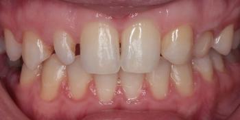 Шипковидный зуб в зоне улыбки, исправление винирами фото до лечения