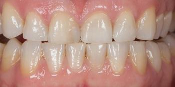 Отбеливания зубов холодным светом SmartBleach фото до лечения