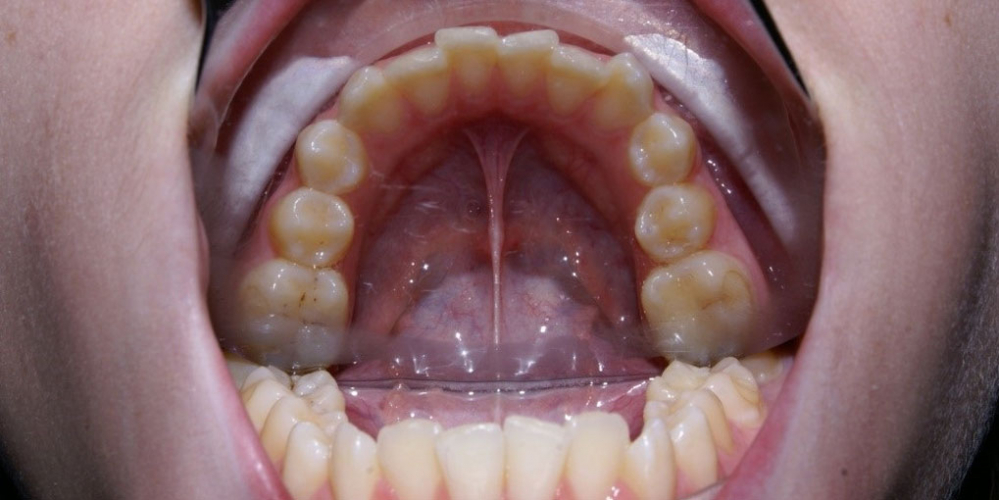 До лечения. Результат выравнивания зубов на нижней и верхней челюстях
