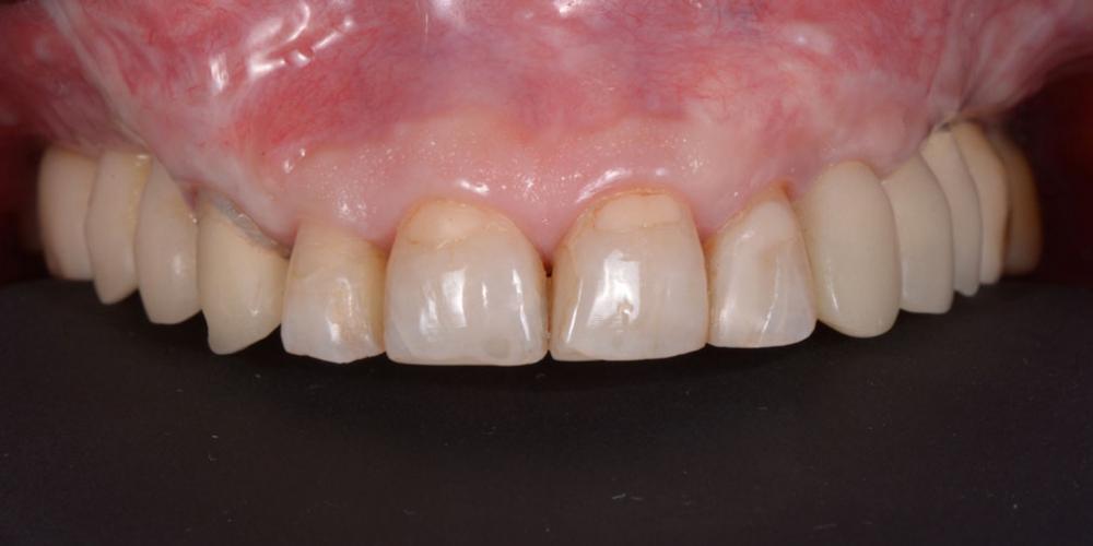 этап временного протезирования на имплантатах и зубах после проведенных операций Тотальная стоматологическая реабилитация пациента с использованием 13-ти имплантов и 28 виниров