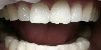 Отбеливание зубов системой ZOOM 3 фото после лечения