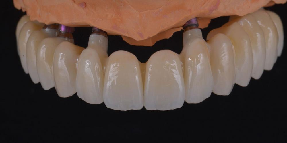 Постоянные цельнокерамические реставрации с опорой на индивидуальные абатменты из диоксида циркония на на модели - верхняя челюсть. Полное восстановление двух челюстей на 16 имплантатах