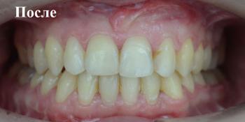 Исправление положения челюстей и неправильного положения зубов фото после лечения