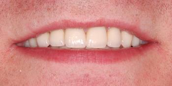 Восстановление зоны улыбки винирами empress e-max фото после лечения