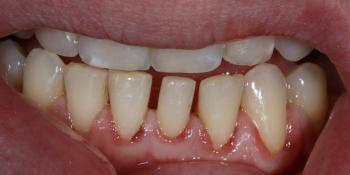 Терапевтический винир, микродентия зуба фото до лечения