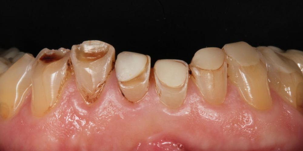 Нижняя челюсть до лечения. Тотальная стоматологическая реабилитация пациента: 12 имплантов + 28 виниров