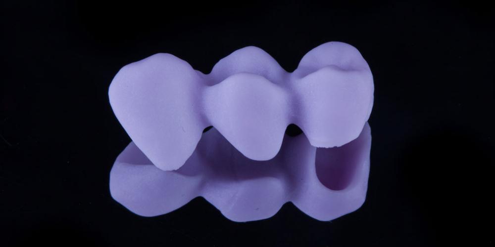 Установка мостовидного протеза из 3х единиц с опорой на 2 зуба