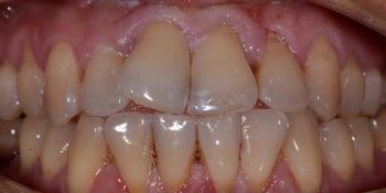 Делаем красивую улыбку, эстетическая реставрация зубов фото до лечения