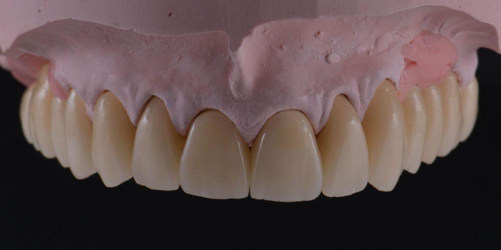 Цельнокерамические реставрации на зубы (виниры, коронки) и импантаты на индивидуальных абатментах из диоксида циркония на модели - верхняя челюсть. Тотальная стоматологическая реабилитация пациента: 6 дентальных имплантов, 28 керамических виниров