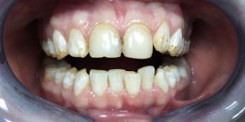 Установка виниров на зубы верхней и нижней челюсти фото до лечения