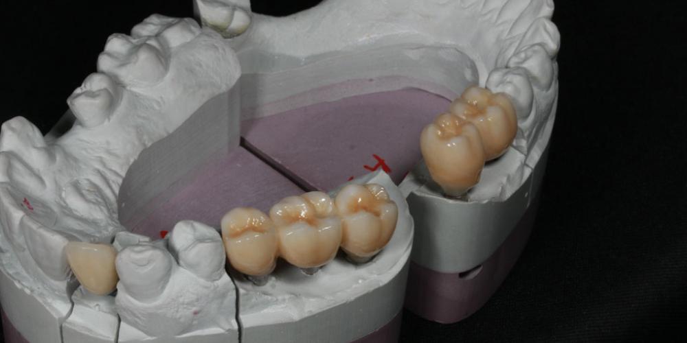 В зуботехнической лаборатории изготовлены и индивидулизированные  цельнокерамические коронки с опорой на импланты. Восстановление жевателньых зубов (имплантация MIS Seven, безметалловые коронки)