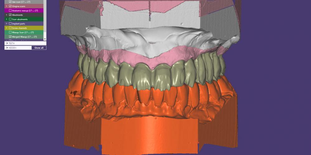 Этап компьютерного моделирования и изготовления постоянных керамических реставраций с опорой на имплантаты. Полное восстановление двух челюстей на 16 имплантатах