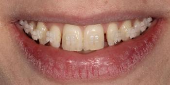 Исправление боковых резцов верхней челюсти керамическими винирами фото до лечения