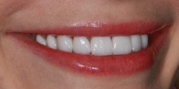 Голливудская улыбка с помощью керамических виниров фото после лечения