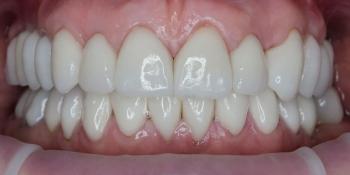 Комплексное лечение и создание красивой улыбки фото после лечения