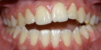 Результат исправления неровности зубов на верхней и нижней челюстях фото до лечения