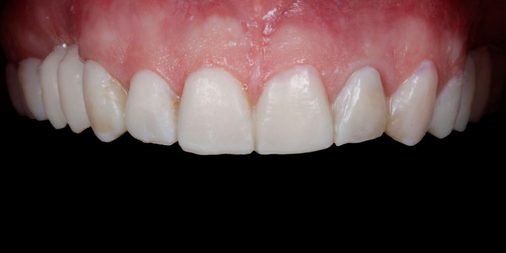 Примерка будущих зубов. Тотальная реабилитация пациента, 5 имплантов, 28 виниров