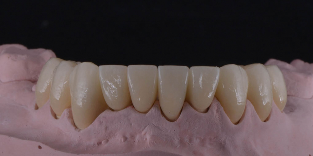 Цельнокерамические реставрации на зубы (виниры, коронки) и импантаты на индивидуальных абатментах из диоксида циркония на модели - нижняя челюсть. Тотальная стоматологическая реабилитация пациента: 6 дентальных имплантов, 28 керамических виниров