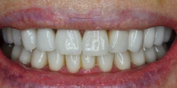 Установка керамических коронок и виниров из материала E-max фото после лечения