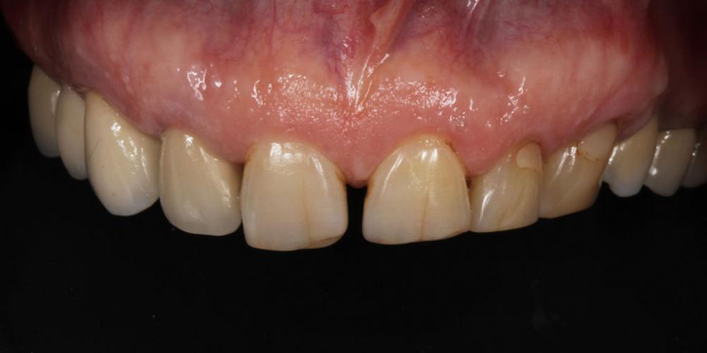 Верхняя челюсть до лечения. Тотальная стоматологическая реабилитация пациента: 12 имплантов + 28 виниров