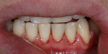 Терапевтический винир, микродентия зуба фото после лечения