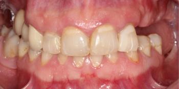 Тотальная стоматологическая реабилитация пациента с использованием 13-ти имплантов и 28 виниров фото до лечения