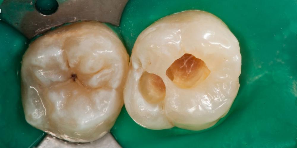Результат лечения кариеса, реставрация жевательного зуба