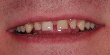 Восстановление зоны улыбки винирами empress e-max фото до лечения