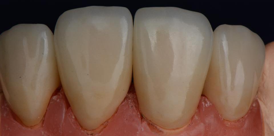 Делаем красивую улыбку, эстетическая реставрация зубов