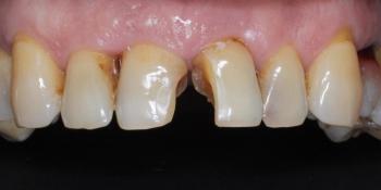 Восстановление передних зубов композитным материалом и коронками фото до лечения