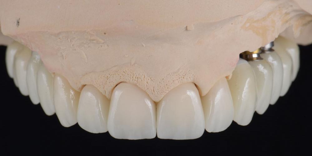 цельнокерамические реставрации на зубы (виниры, коронки) и импантаты на индивидуальных абатментах из диоксида циркония на модели Тотальная стоматологическая реабилитация пациента с использованием 13-ти имплантов и 28 виниров