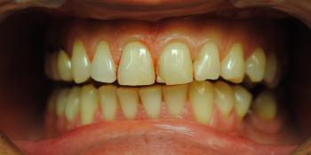Заменены композитные реставрации на зубах фронтальной группы фото до лечения