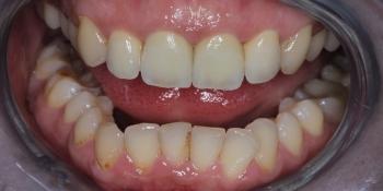 Восстановление передних резцов коронками из диоксида циркония фото после лечения