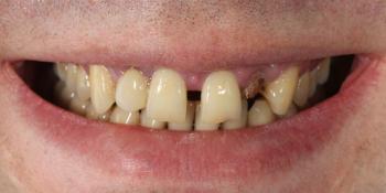 Эстетическое протезирование передних верхних зубов с предварительным исправлением прикуса и импланта фото до лечения