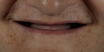 Устанение полной адентии двух челюстей при помощи установки 4 имплантатов на каждую челюсть фото до лечения