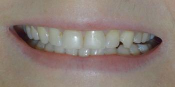 Преображение улыбки керамическими винирами Emax фото до лечения
