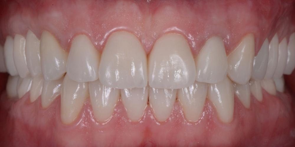 Готовая работа (цельнокерамические реставрации на зубах и имплантатах с опорой на индивидуальные циркониевые абатменты) в полости рта. Тотальная реабилитация пациента, 5 имплантов, 28 виниров
