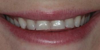 Голливудская улыбка с помощью керамических виниров фото до лечения