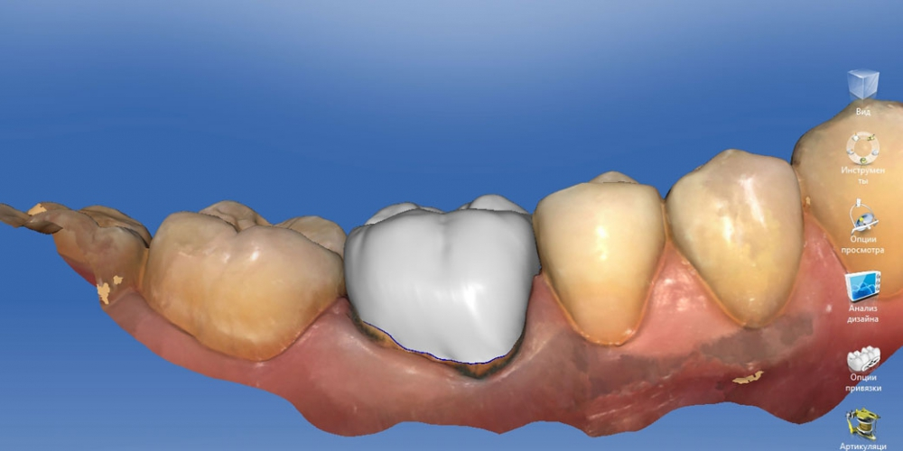 Восстановление зуба цельнокерамической коронкой смоделированной в 3D