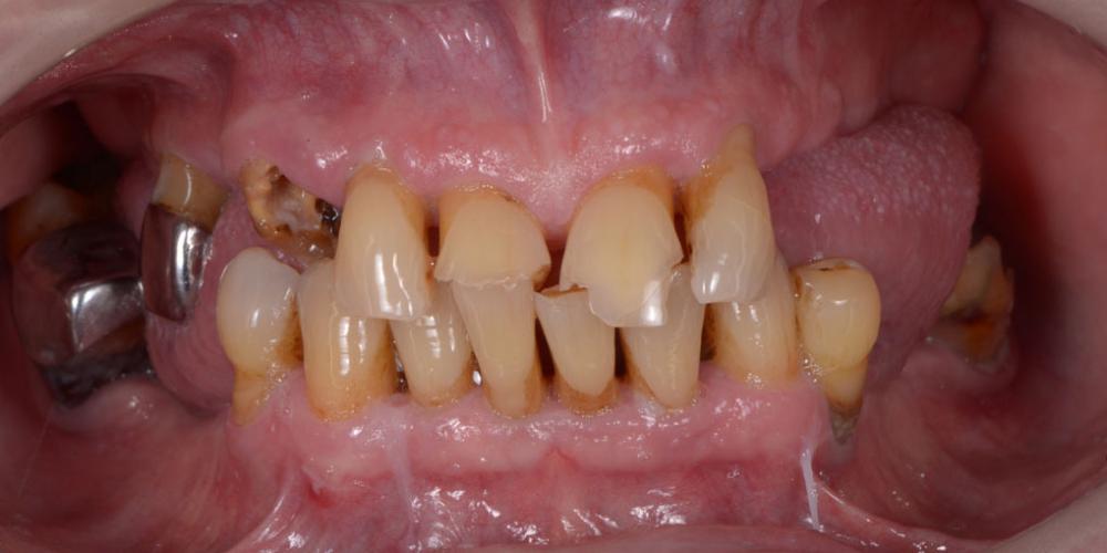 Исходная ситуация. Полное восстановление двух челюстей на 16 имплантатах