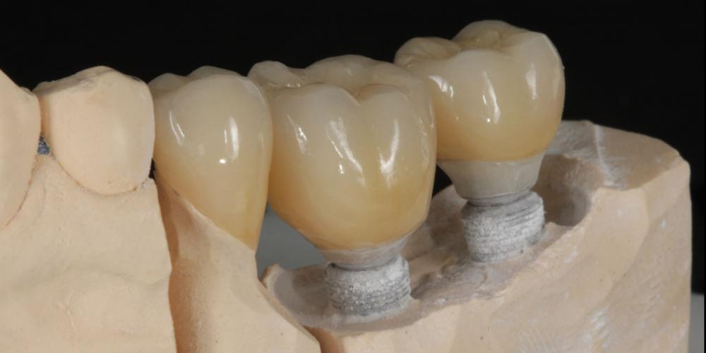 готовая работа (цельнокерамические реставрации на зубах и имплантатах с опорой на индивидуальные циркониевые абатменты) на модели Цельнокерамические реставрации на зубах и имплантатах с опорой на индивидуальные абатменты