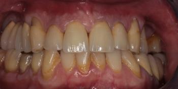 Лечение и протезирование зубов вкладками и металлокерамическими коронками фото после лечения