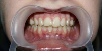 Результат выравнивания зубов на нижней и верхней челюстях фото до лечения