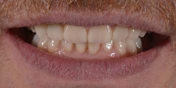 Тотальная стоматологическая реабилитация пациента: 12 имплантов + 28 виниров фото после лечения