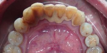 Устранение зубных отложений, кровоточивости и воспаления дёсен фото до лечения