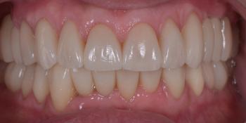 Тотальная стоматологическая реабилитация пациента: 6 дентальных имплантов, 28 керамических виниров фото после лечения