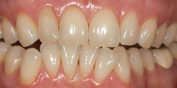 Отбеливания зубов по безопасной технологии SmartLight 3LT фото до лечения