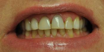 Пигментированные реставрации на зубах фронтальной группы фото до лечения