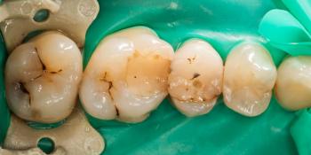 Застревание пищи между 6 и 5, а так же между 5 и 4 зубами фото до лечения